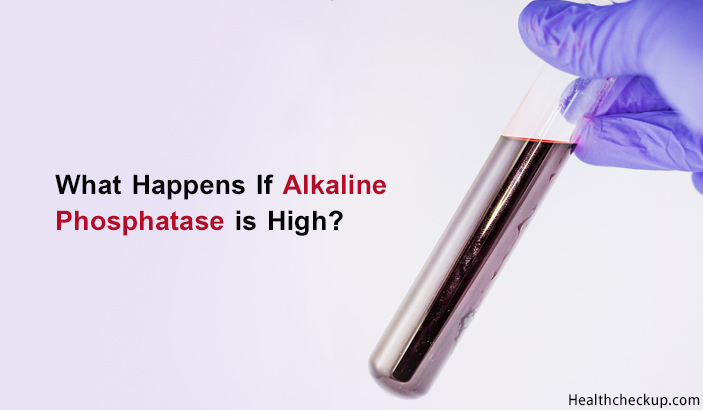 Elevated Alkaline Phosphatase – Symptoms, Causes And Treatment
