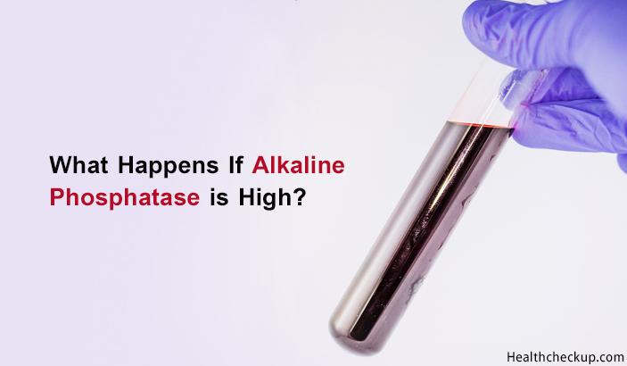 Alkaline Phosphatase High Symptoms Causes Treatment