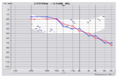Pure Tone Audiometry Graph 1