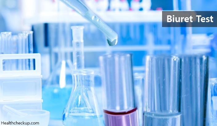 Biuret Test – Principle, Procedure, Results Interpretation