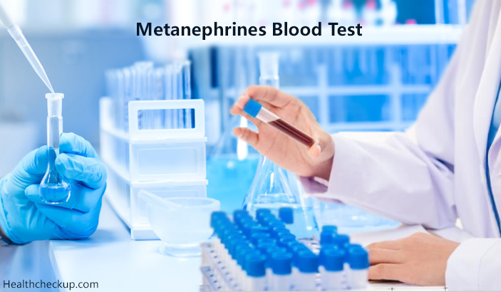 Metanephrines Blood Test – Purpose, Preparation, Procedure, Results, Cost