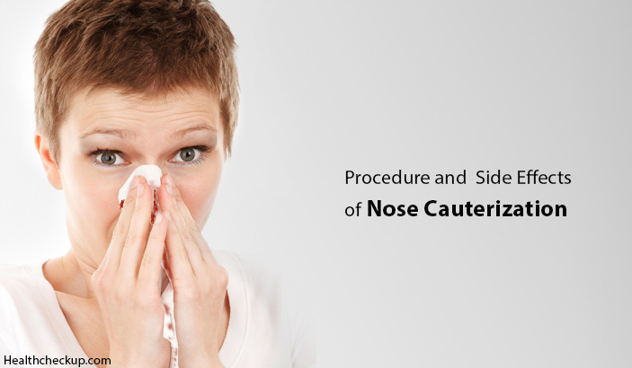 Nose Cauterization Side Effects, Procedue