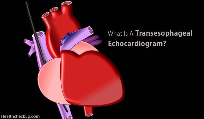 Transesophageal Echocardiogram - Preparation, Procedure, Views, Complications