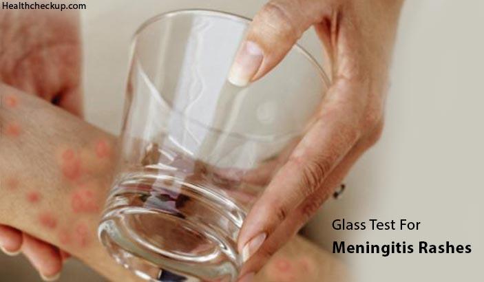 Glass Test for Meningitis Rash – Procedure, Symptoms, Treatment