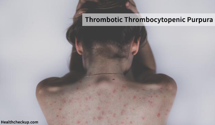 Thrombotic Thrombocytopenic Purpura – Symptoms, Causes, Diagnosis, Treatment