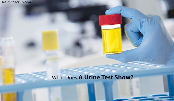 what does a urine test show