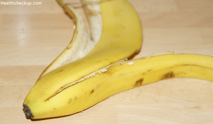 Banana Peels - Home Remedy For Skeeter Syndrome