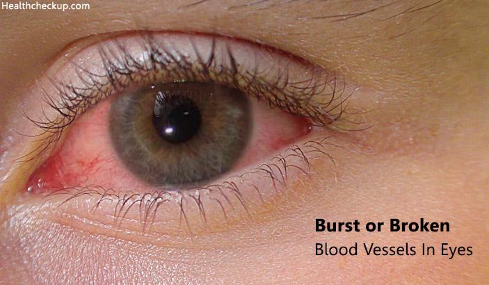 Burst or Broken Blood Vessels in Eyes