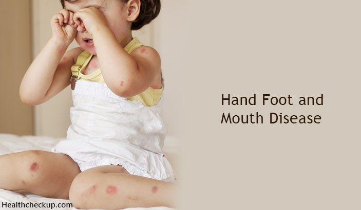 How Is Hand, Foot And Mouth Disease Spread?