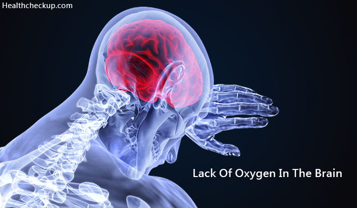 Lack of Oxygen In The Brain Symptoms, Causes, Treatment, Side Effects