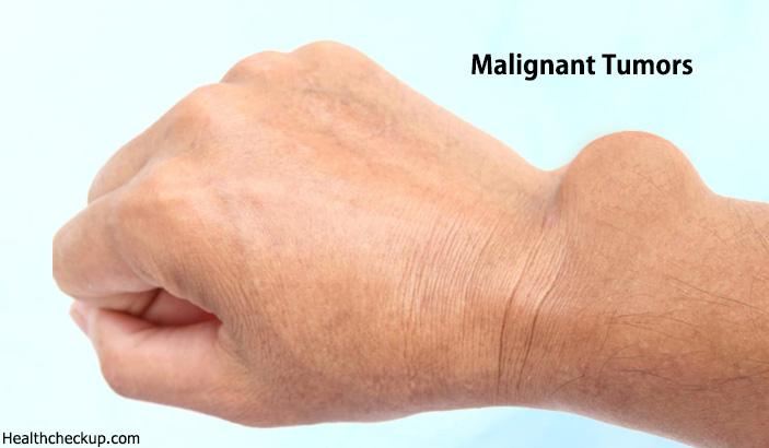 Malignant Tumor Symptoms, Causes, Diagnosis, Treatment