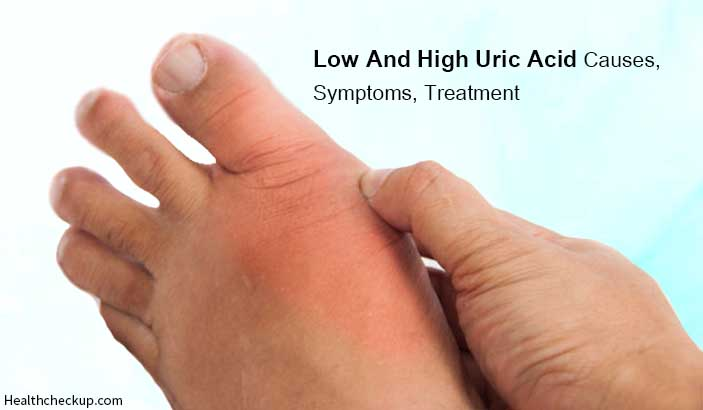 Low and High uric acid causes, symptoms, treatment