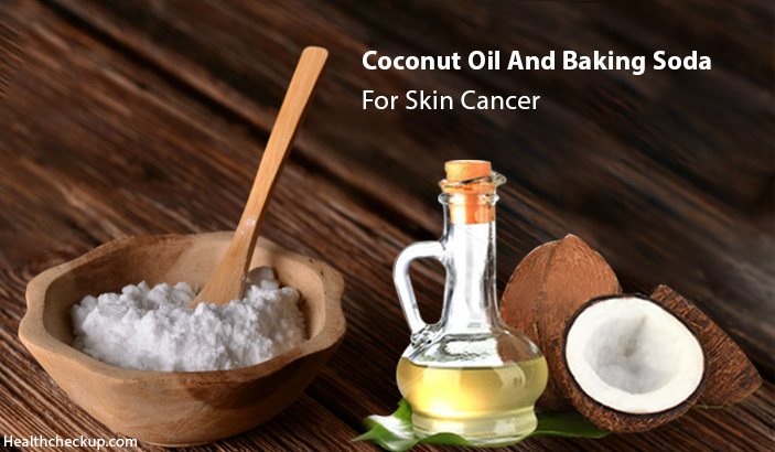 How To Use Coconut Oil And Baking Soda For Skin Cancer