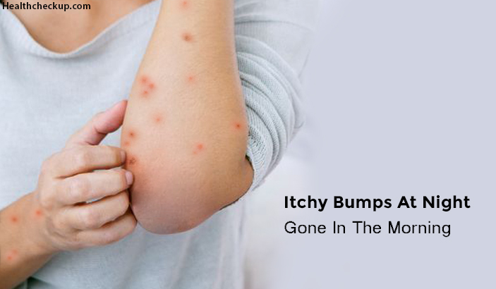 Itchy Bumps at Night Gone in The Morning – Causes, Symptoms, Home Remedies