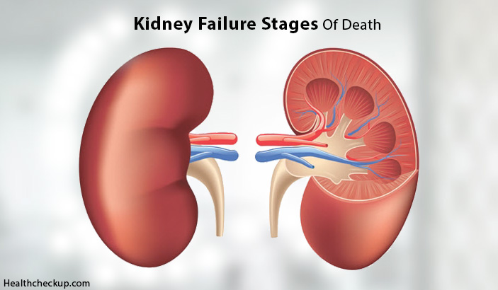 What Are The Kidney Failure Stages of Death?