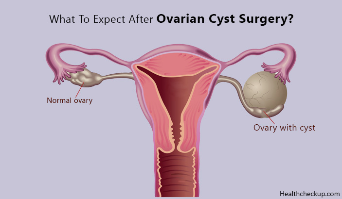 What to Expect After Ovarian Cyst Surgery?