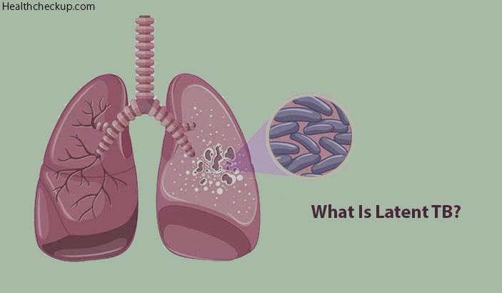 Duration and Side Effects of Latent TB Treatment