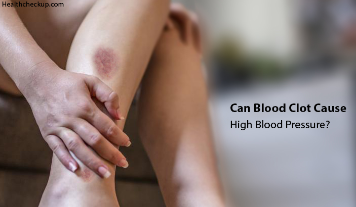 Can Blood Clot Cause High Blood Pressure