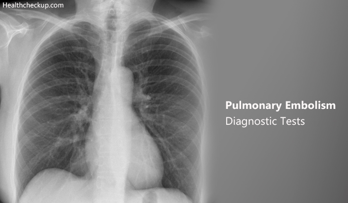 Pulmonary Embolism – Diagnostic Tests,  Prep, Procedure, Results
