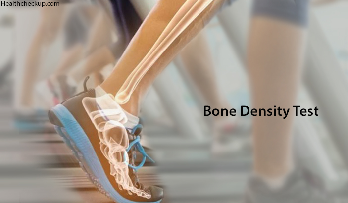 bone density test preparation