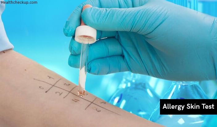 Allergy Skin Test – Preparation, Procedure, Results Interpretation, Side Effects