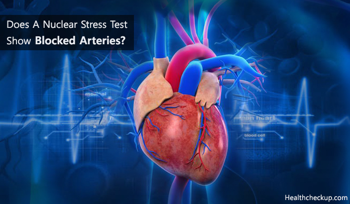 Does A Nuclear Stress Test Show Blocked Arteries?