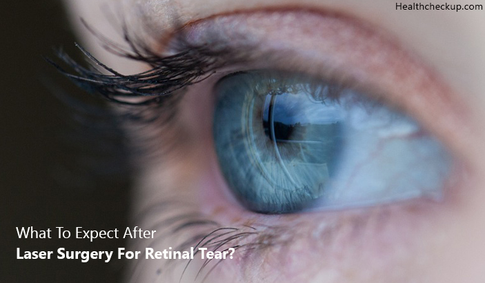 What To Expect After Laser Surgery For Retinal Tear?