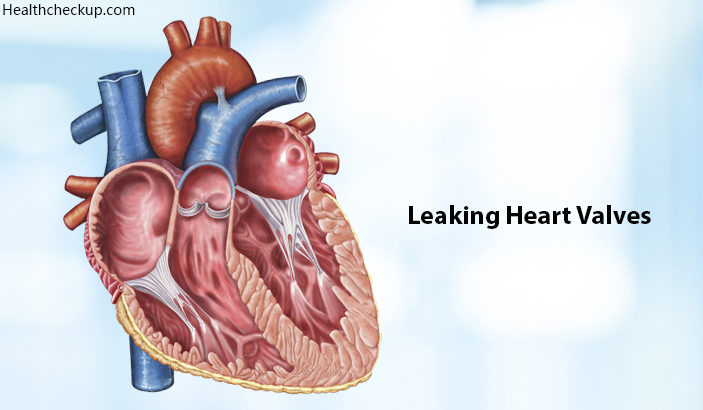 Leaking Heart Valves – Life Expectancy, Causes, Symptoms, Treatment