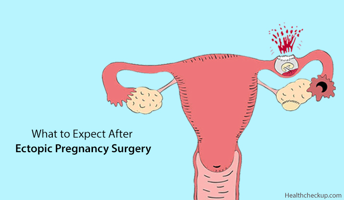 What To Expect After Ectopic Pregnancy Surgery?