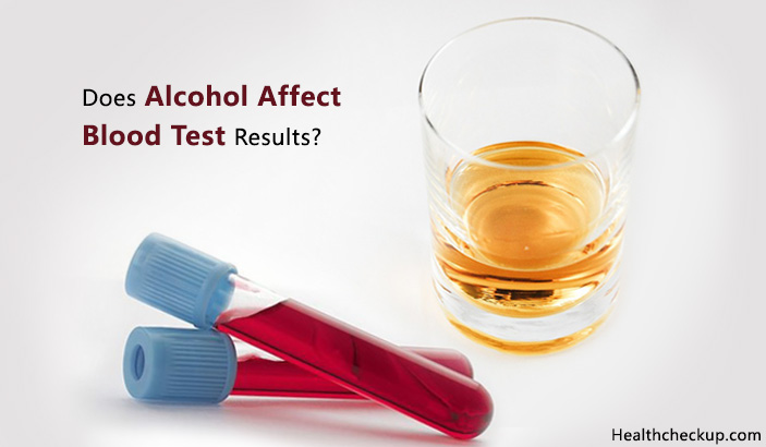 Does Alcohol Affect Blood Test Results?