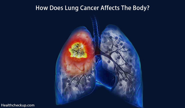 How Does Lung Cancer Affects The Body