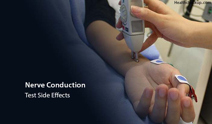 Nerve Conduction Test Side Effects