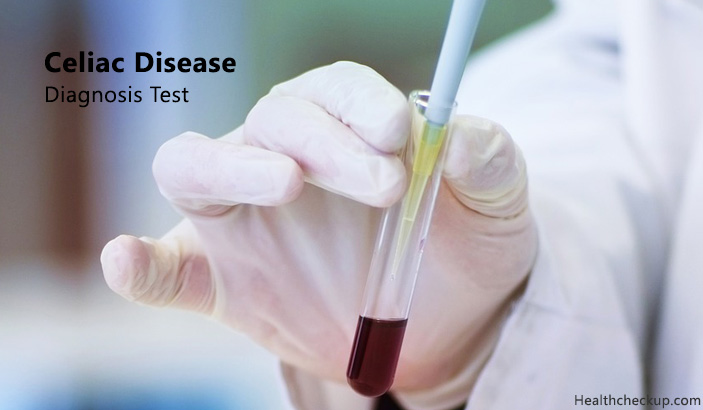 Tests to Diagnose Celiac Disease – Preparation, Procedures, Results