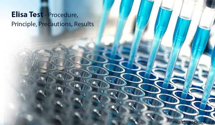 ELISA Test – Principle, Procedure, Preparation, Results Interpretation