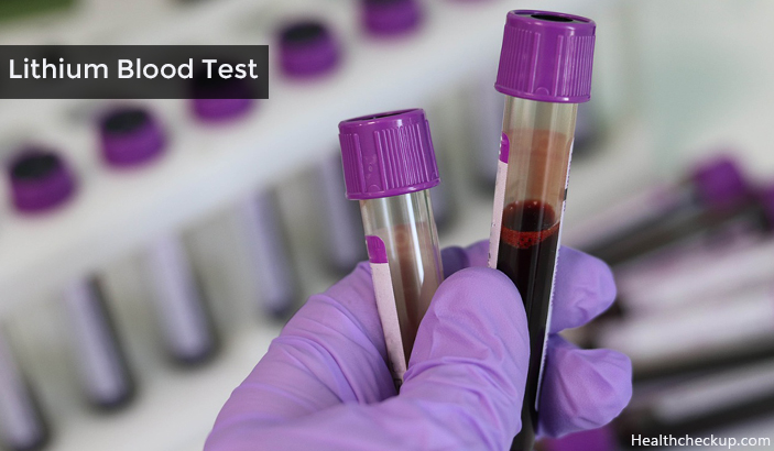 Lithium Blood Test Preparation, Procedure, Resutls, Side Effects