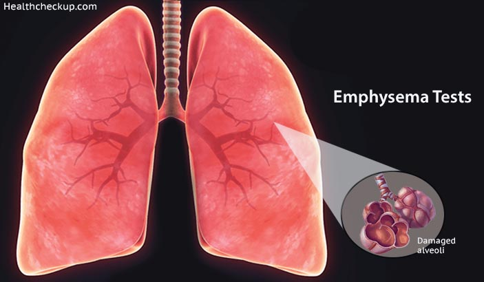 Emphysema Tests - Prep, Procedure, Results, Treatment by Dr Kaushal