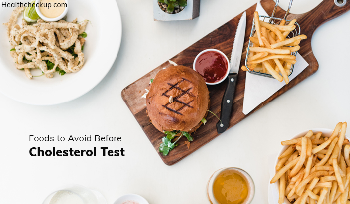 List of Foods To Avoid Before A Cholesterol Test