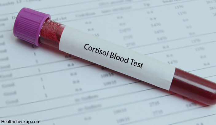Cortisol Blood Test