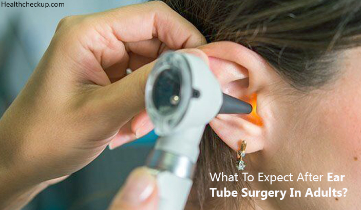 What To Expect After An Ear Tube Surgery In Adults?
