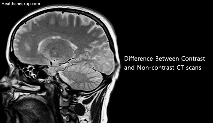 difference between contrast and noncontrast ct scan