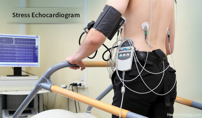 Stress Echocardiogram - Indications, Prep, Procedure and Results