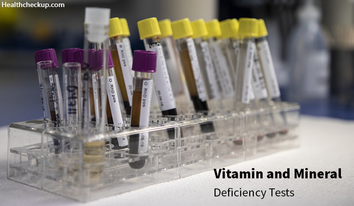 Blood Test for Minerals and Vitamin Deficiencies