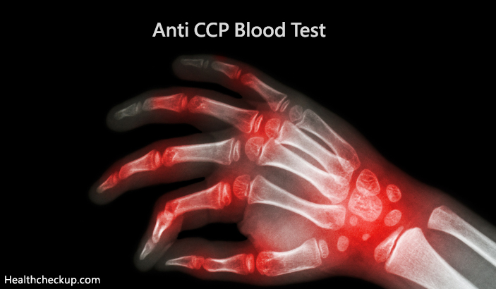 Anti CCP Blood Test