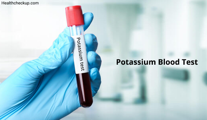 Potassium Blood Test: Low, High and Normal Range