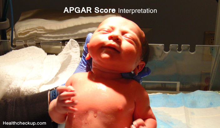 APGAR Score Interpretation - Low, High and Normal