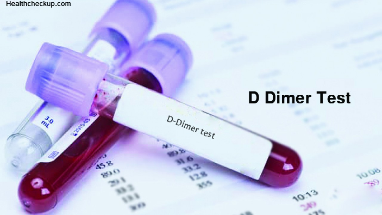 D Dimer Blood Test - Accuracy, Purpose, Procedure, And Normal Range