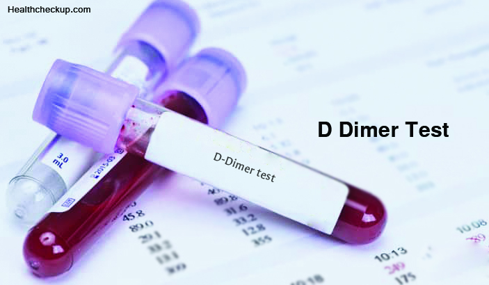 What is a D Dimer Blood Test?