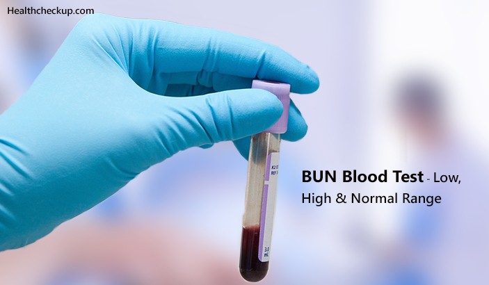 BUN Blood Test - Low, High & Normal Range