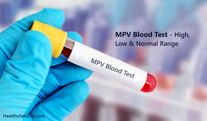 MPV Blood Test - High, Low & Normal Range