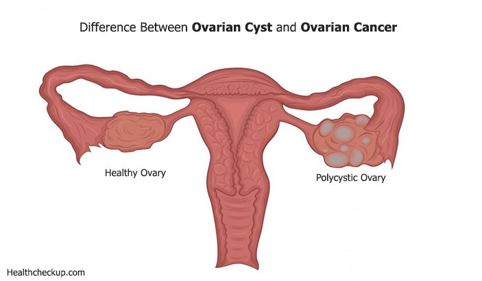 Difference Between Ovarian Cyst And Ovarian Cancer